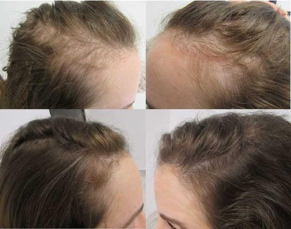 håravfall under graviditet