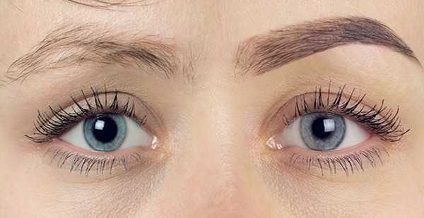 hårtransplantation ögonbryn pris